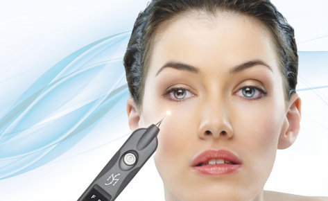 Plasma Pen Facelift